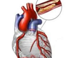 Ознаки та причини виникнення атеросклерозу судин фото
