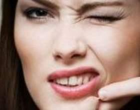 Прищі навколо рота: причини, види та лікування. Чому виникають прищі в ротовій порожнині: якими вони бувають і як правильно їх лікувати фото