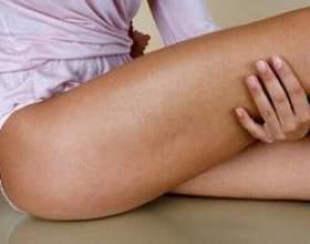 Рецепти домашнього лікування артрозу тазостегнового суглоба народними засобами фото
