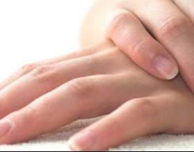 Лущення рук - причини і способи лікування фото