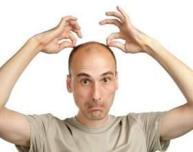 Сильна половина суспільства починає втрачати з віком волосся фото