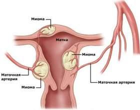 Симптоми міоми матки фото