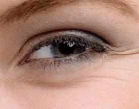 Топ-5 народних рецептів масок від зморшок навколо очей фото
