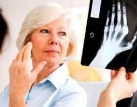 Традиційне лікування подагричного артриту і народні засоби для зняття болю фото