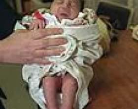 Запалення легенів у дітей фото