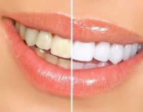 Чи шкідливо вибілювати зуби - міфи і реальність білосніжної усмішки фото