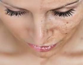 Всі причини і ефективне лікування утворилися на обличчі пігментних плям фото