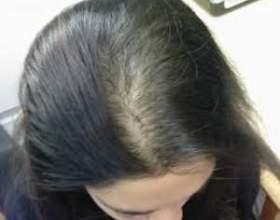 Випадання волосся (алопеція) - симптоми і лікування у жінок фото